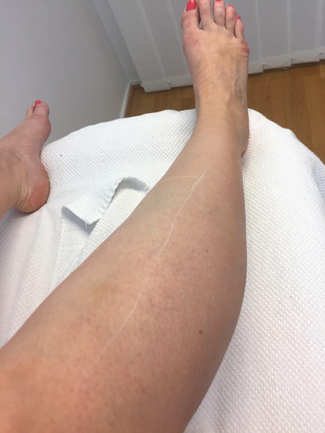 Hår på benen är vitmarkerat