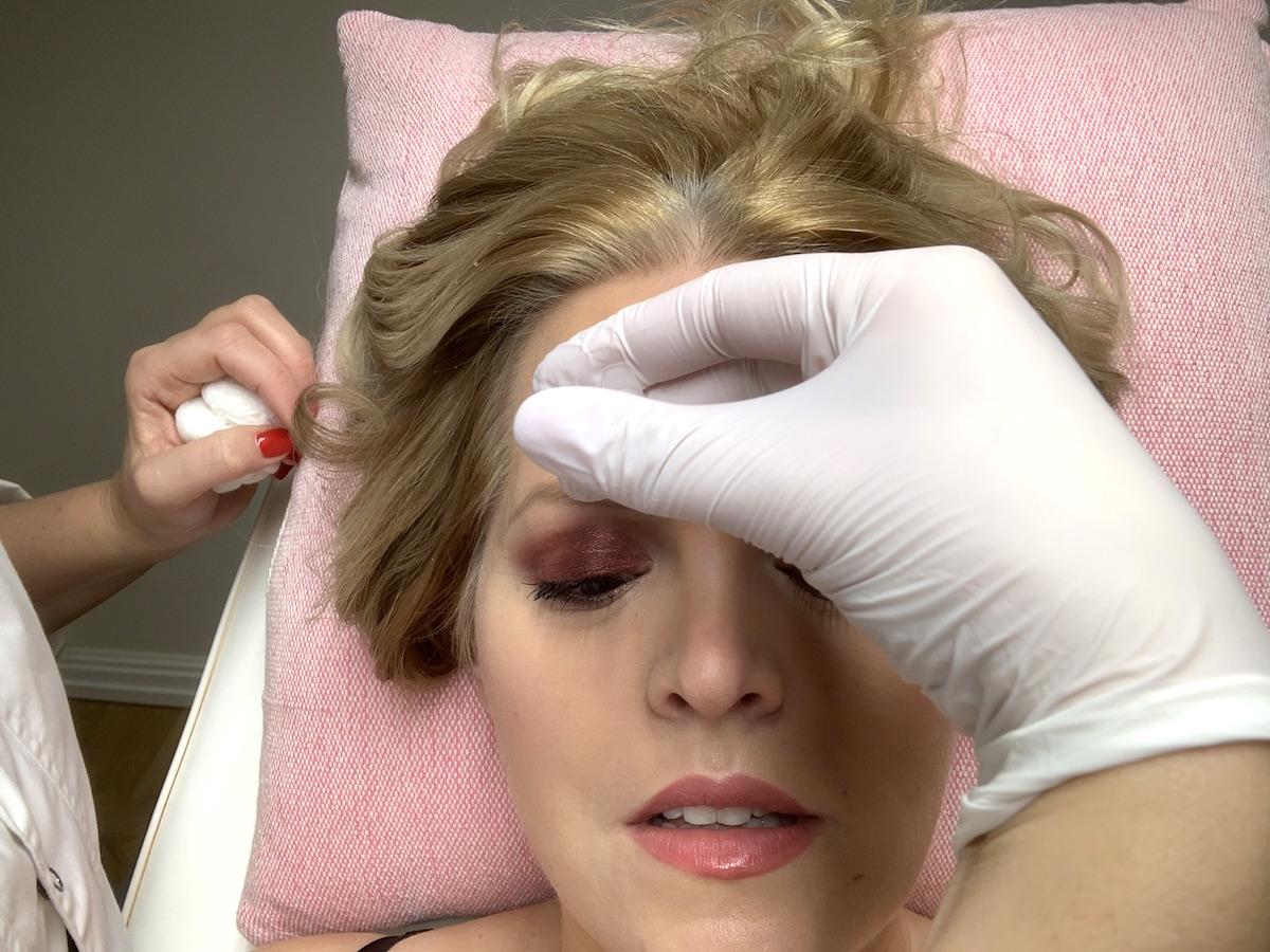 Jag testar botox i pannan.