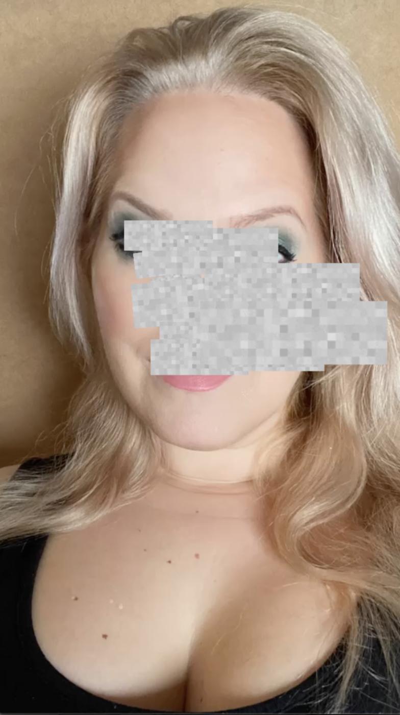 Elin Fagerberg med grått fält över halva ansiktet för att visa hur hon ser med ena ögat