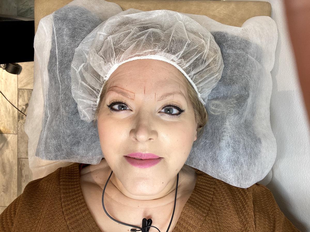 Elin ligger ner och tittar in i kameran. Det är ritat runt hennes bryn och hon har en operationsmössa på huvudet.