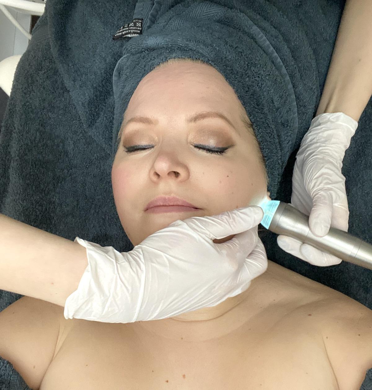 Ett munstycke med ett blått sken och Elins ansikte i närbild. Hudterapeutens händer har handskar på.