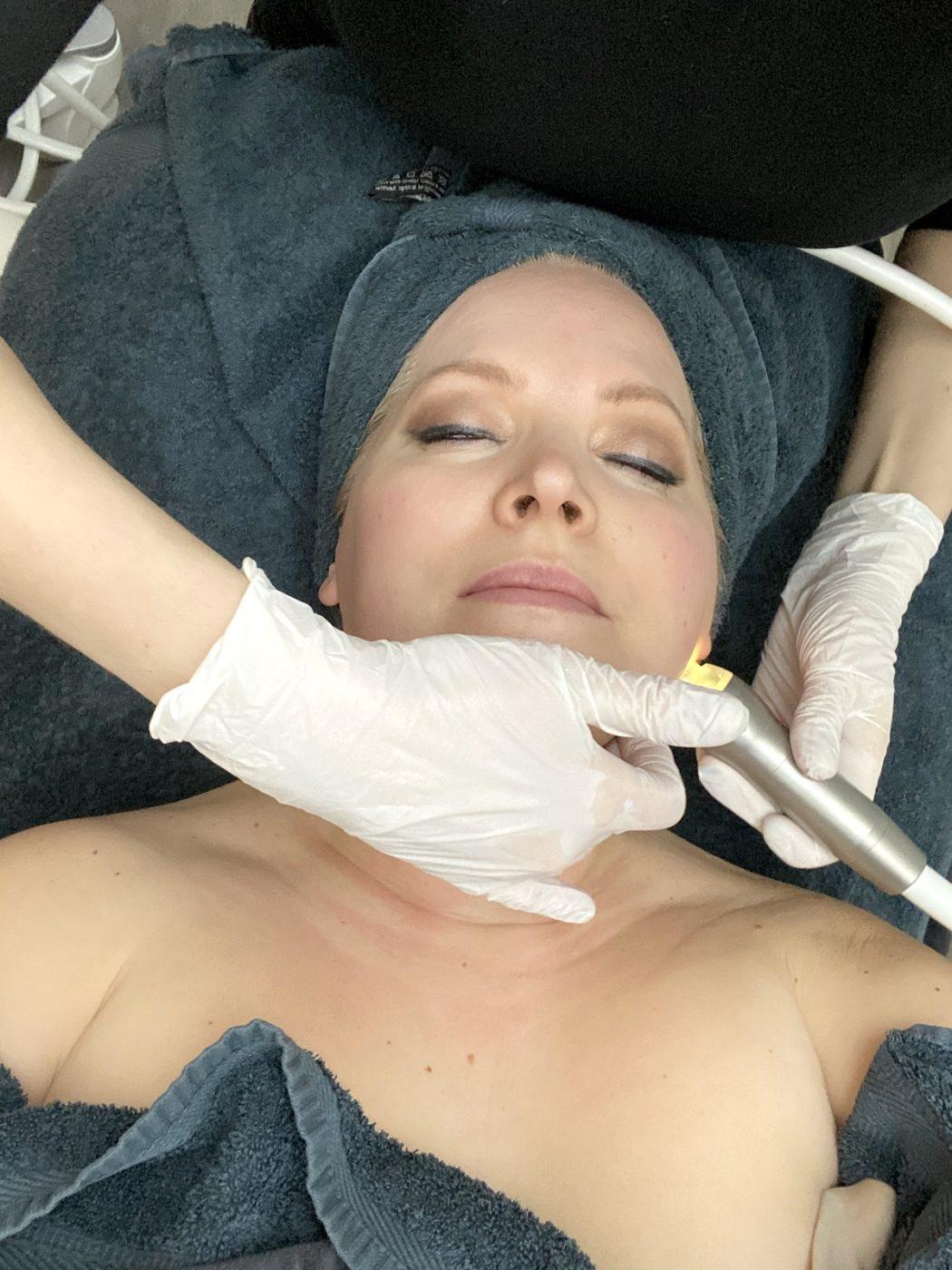 Närbild på Elin med två händer i ansiktet och en stav som lyster i gult från Skinfusor.